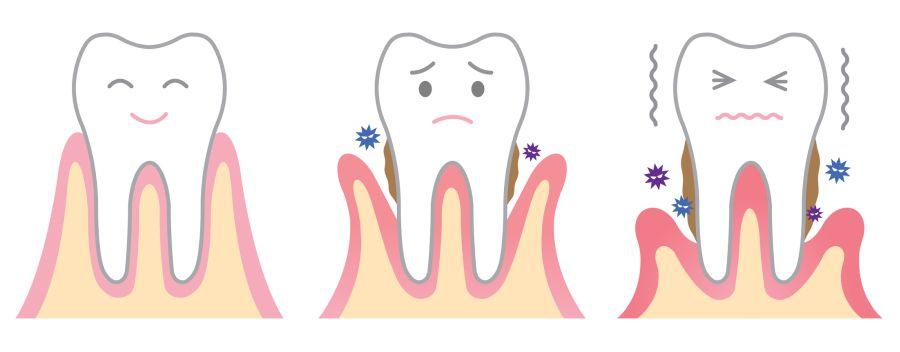 tratament parodontoza