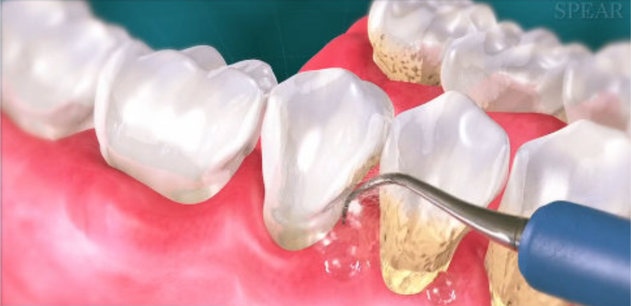 tratament parodontoza, CriniDent